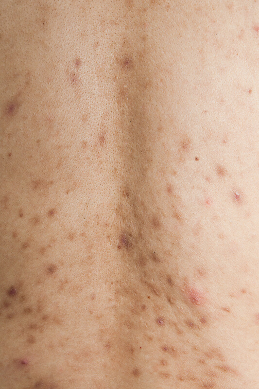 post-inflammatory hyerpigmentation caused by back acne