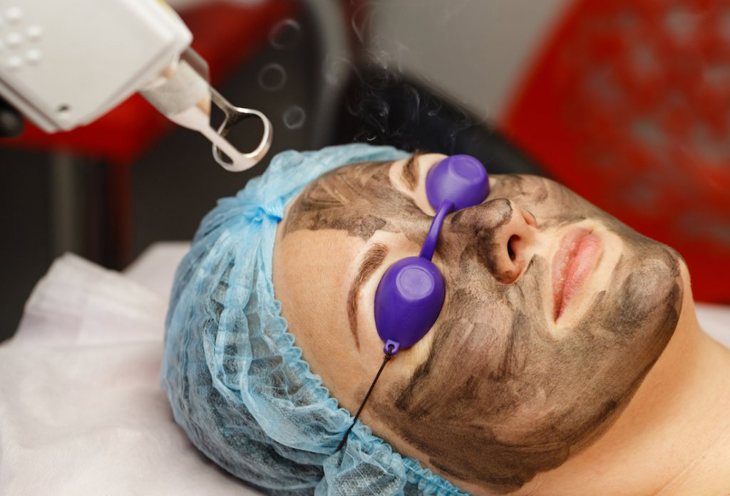 carbon peel laser clinic Singapore