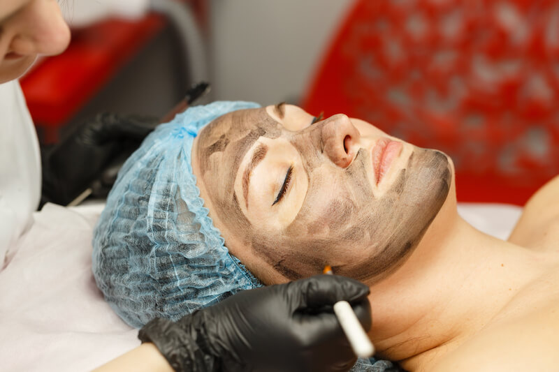 carbon peel laser treatment in Singapore