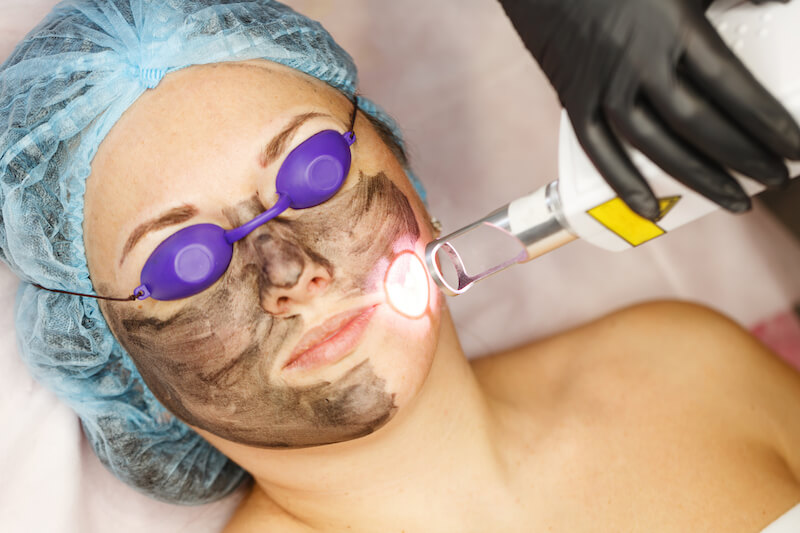 best carbon peel laser in Singapore