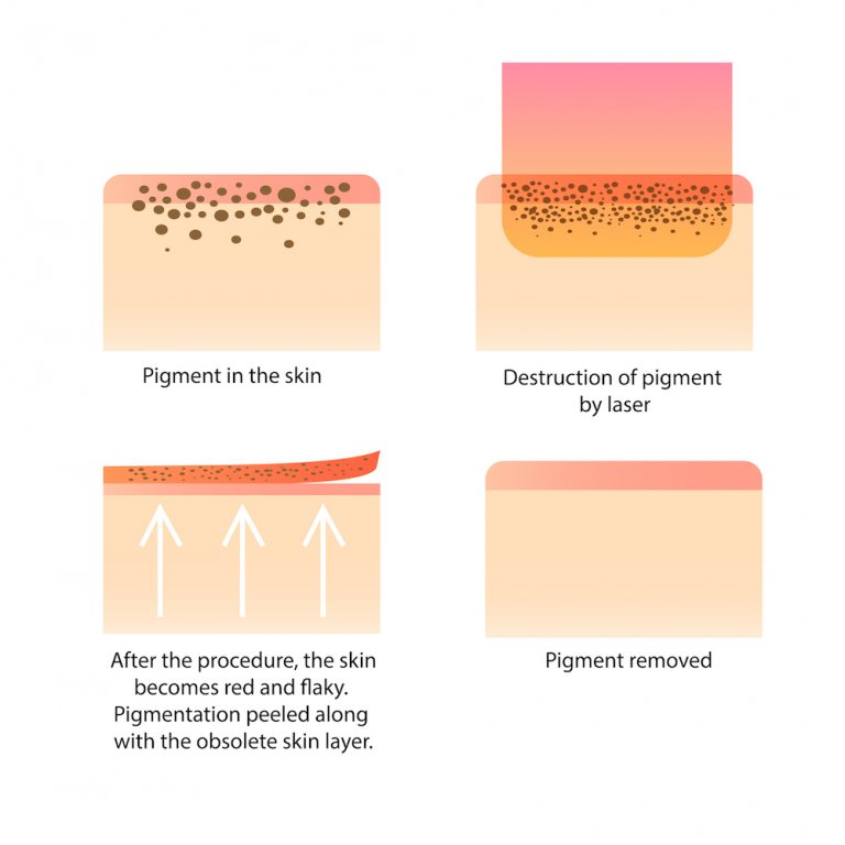 laser pigmentation removal Singapore