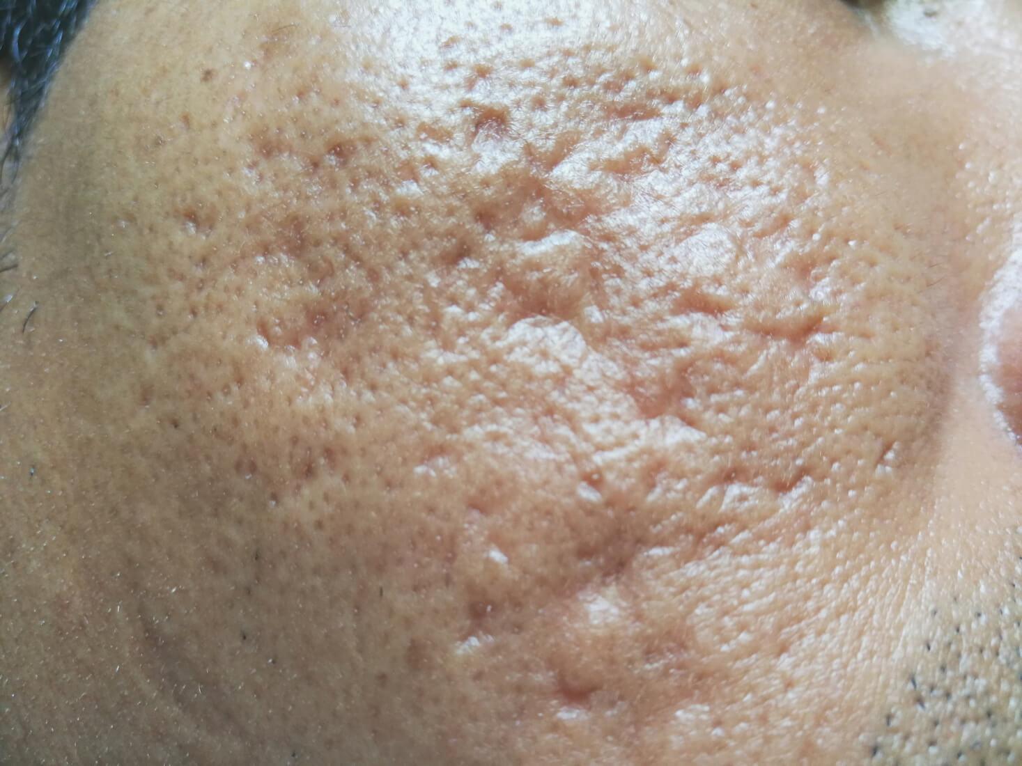 tca cross acne scars in Singapore