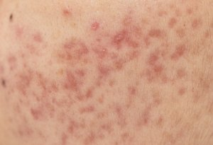 post acne red marks pulsed dye laser treatment