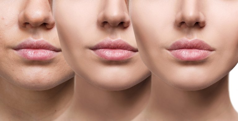 best fillers treatment in Singapore