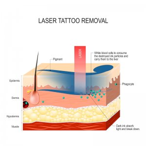 laser tattoo removal clinic Singapore