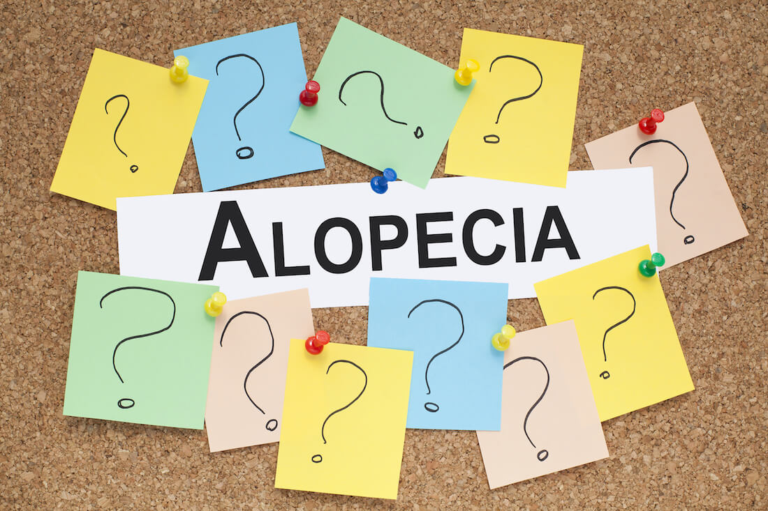 alopecia areata injection treatment in Singapore
