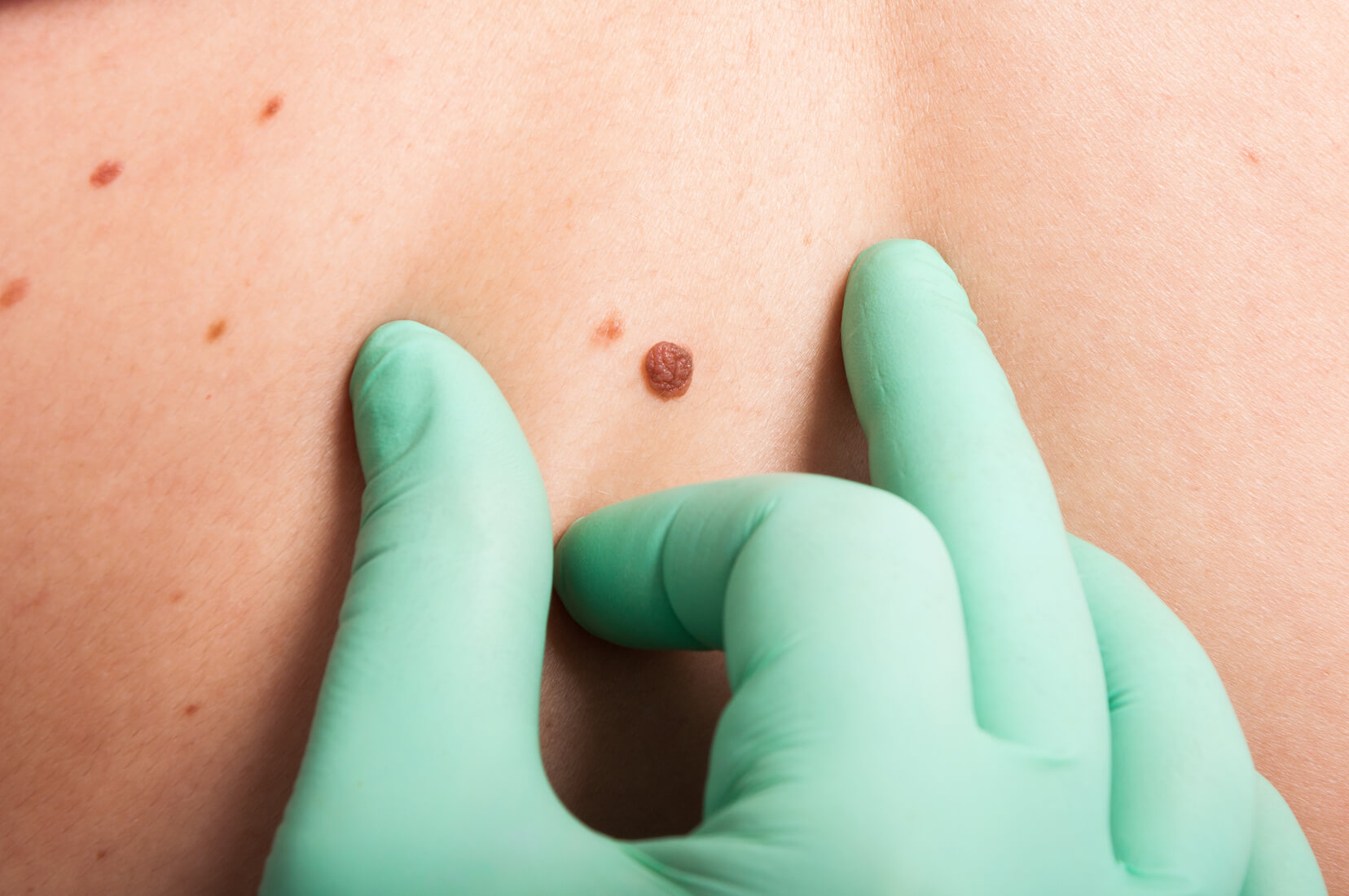 mole removal clinic in Singapore