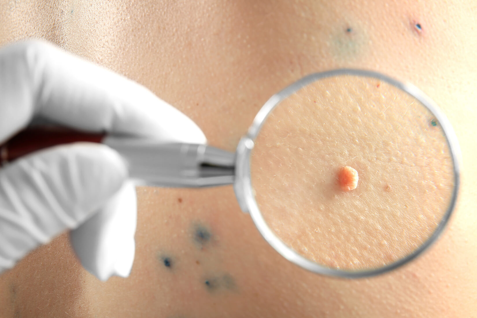 skin tag removal in Singapore