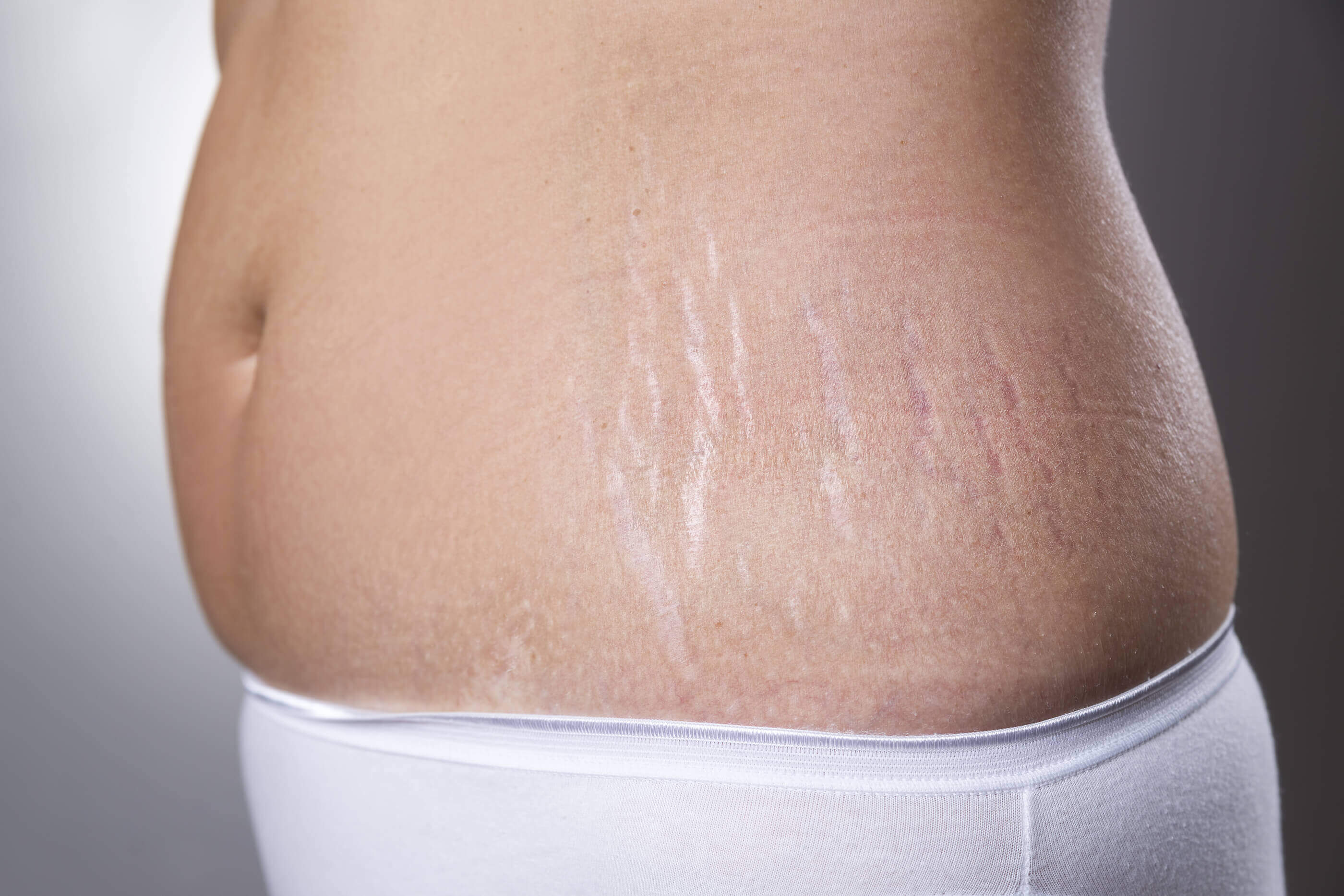 stretch marks removal clinic in Singapore