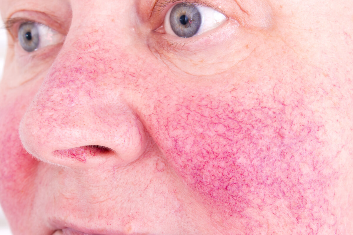 rosacea treatment clinic in Singapore