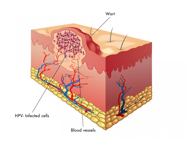 viral warts diagram