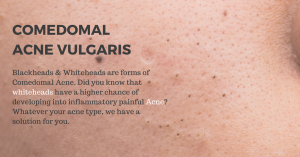 treat blackheads and whiteheads in Singapore clinic