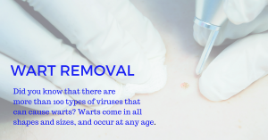 best wart treatment clinic in Singapore