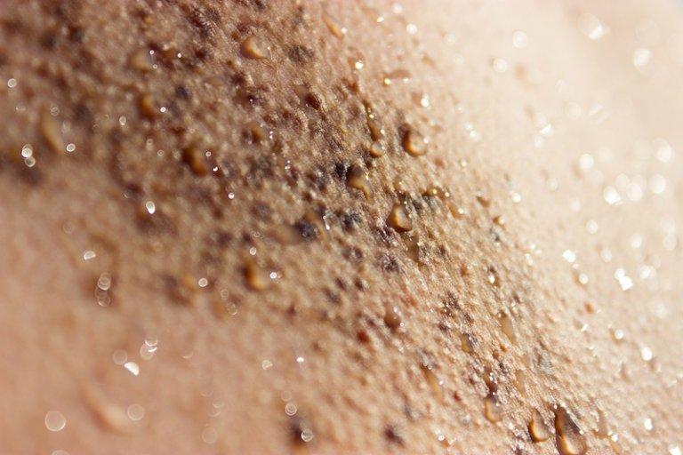 laser birthmark removal