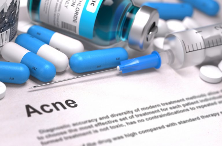 oral steroids for rapid clearing of acne in Singapore