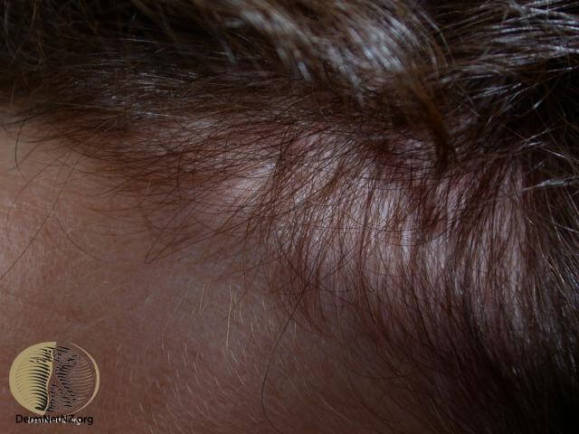best female hair loss treatment in Singapore