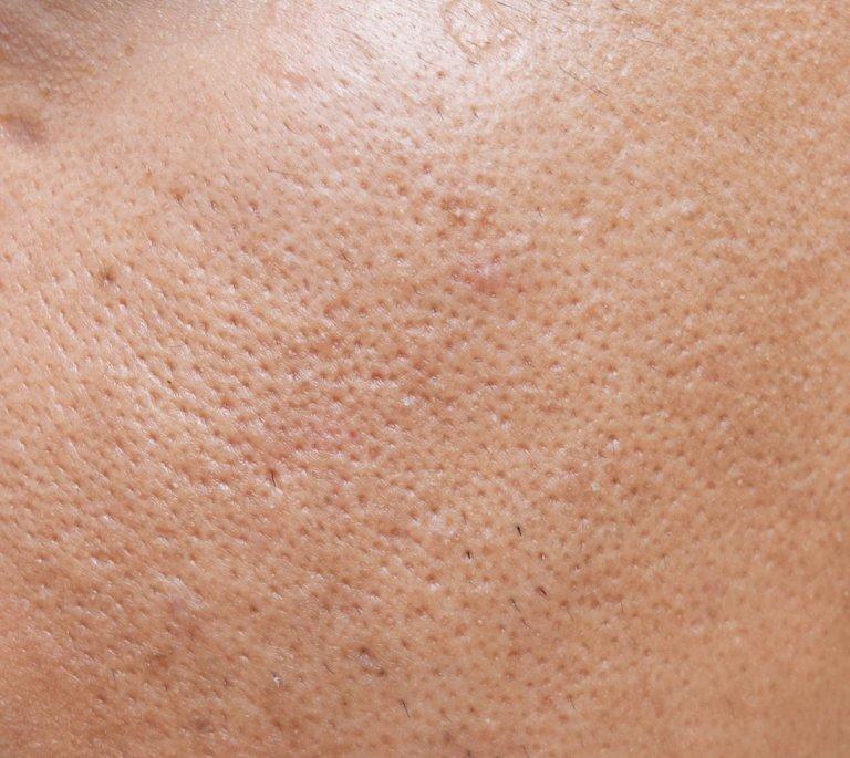 Pore Size Reduction Apax Medical Amp Aesthetics Clinic