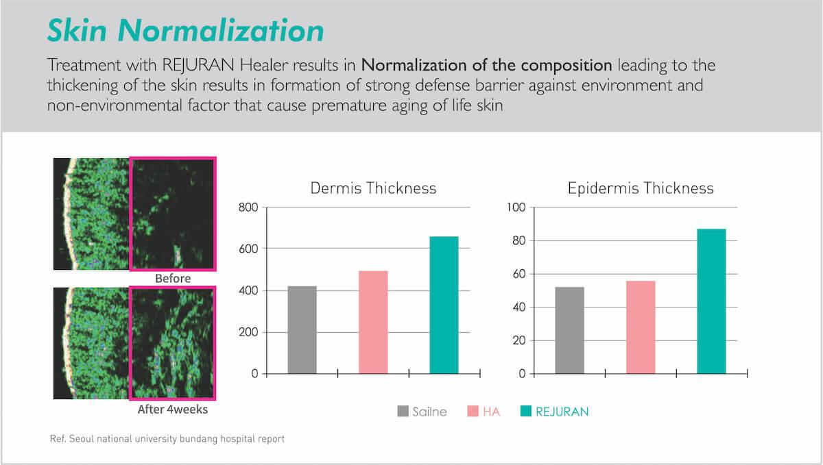 rejuvan healer optimises skin barrier and thickness