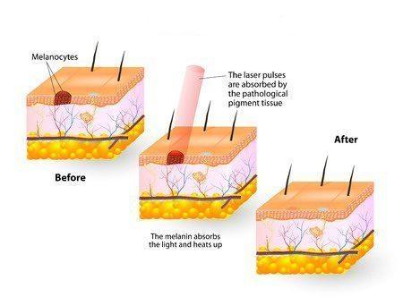 laser treatment for pigmentation underarm singapore