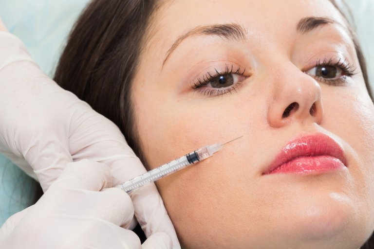 dermal fillers after subcision
