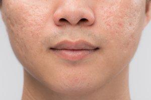 rejuran s acne scars singapore