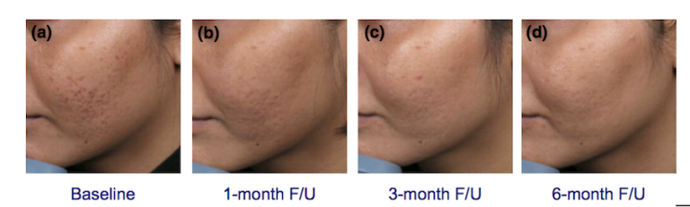 INFINI Acne Scars Removal Singapore | APAX Medical