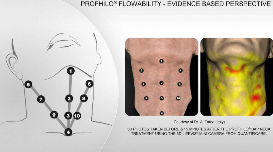 profhilo bap neck