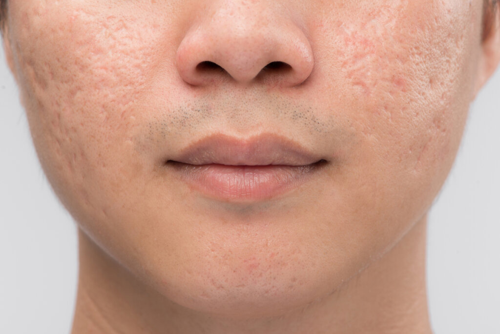 fractional pico laser acne scars treatment